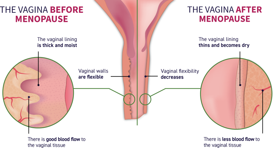 Before menopause, there is good blood flow to the vaginal tissue, the vaginal lining is thick and moist, and the vaginal walls are flexible. After menopause, there is less blood flow to the vaginal tissue, the vaginal lining thins and becomes dry, the vaginal flexibility decreases, and the vagina becomes narrower and shorter.