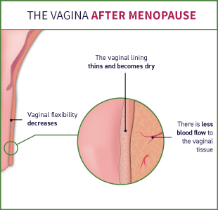 After menopause, there is less blood flow to the vaginal tissue, the vaginal lining thins and becomes dry, the vaginal flexibility decreases, and the vagina becomes narrower and shorter.