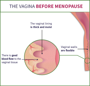 Before menopause, there is good blood flow to the vaginal tissue, the vaginal lining is thick and moist, and the vaginal walls are flexible.